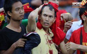Nhìn lại những hình ảnh đổ máu của CĐV bị hành hung trong trận bán kết giữa VN và Malaysia năm 2014