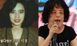 'Thảm hoạ thẩm mỹ' nổi tiếng nhất Hàn Quốc qua đời ở tuổi 57